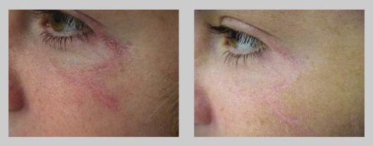 Műtét utáni hegkezelés - SkinCare