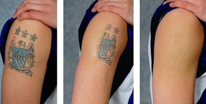 Tetoválás eltávolítása - SkinCare